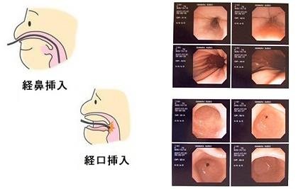 経鼻内視鏡検査(胃カメラ) 滋...
